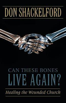 Can These Bones Live Again?