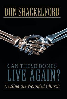 Picture of Can These Bones Live Again?