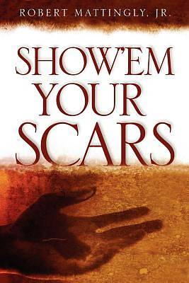 Showem Your Scars